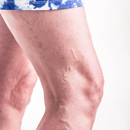 homme-varices