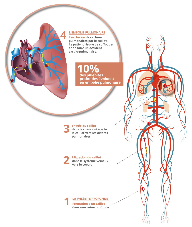 illustration-phlebite-embolie-pulmonaire