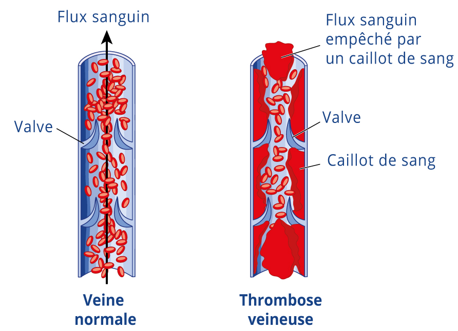 schema-phlebite-thrombose-veineuse-4