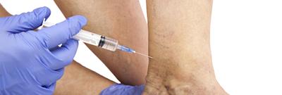 sclerotherapie-varices-des-jambes