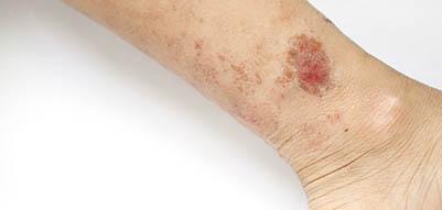eczema-variqueux