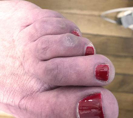 engelure doigt de pied