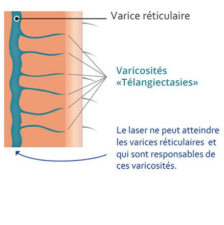 schema-laser-phlebologie-2